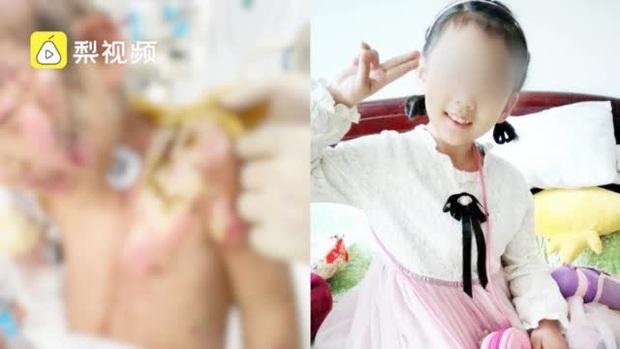 Địa ngục trần gian: Bé gái 6 tuổi bị mẹ ruột cùng bạn trai bạo hành dã man 3 tháng trời, bố đẻ gặp lại cũng không nhận ra con mình - Ảnh 1.