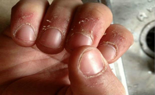 Ngoáy tai, ngoáy mũi, nặn mụn có thể gây tử vong: 5 hành động ngứa tay quen thuộc rất nguy hiểm, không nên làm tùy tiện - Ảnh 11.