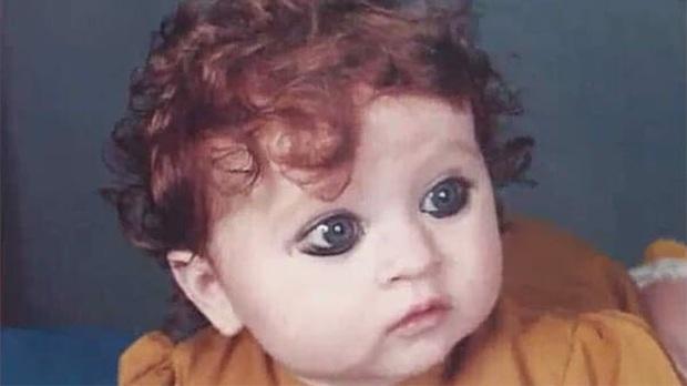 Bé gái sinh ra với ngoại hình khác lạ khiến người đời nguyền rủa là quái vật, 20 năm sau lại khiến ai cũng phải trầm trồ - Ảnh 1.