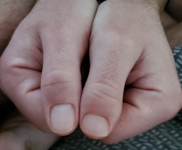Loạt dị nhân sở hữu điểm đặc biệt trên cơ thể khiến người ngoài trầm trồ dù không biết chính chủ phải trải qua đau đớn gì mới có được - Ảnh 2.