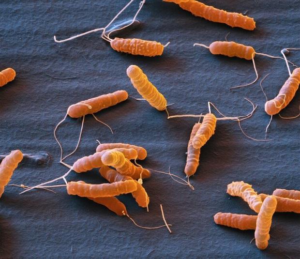 Ăn mực để trong tủ lạnh 1 tuần, cậu bé 11 tuổi có thể phải chạy thận suốt đời do vi khuẩn gây suy thận cấp - Ảnh 5.