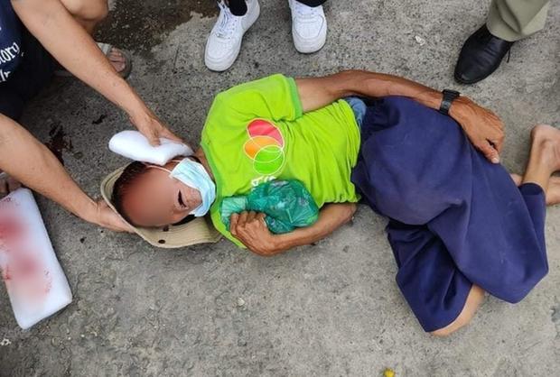 TP.HCM: Phẫn nộ gã đàn ông tông xe làm người bán vé số tật nguyền chấn thương nặng rồi bỏ chạy - Ảnh 1.