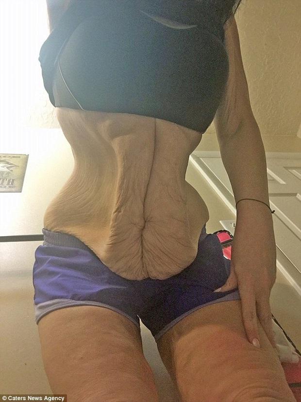Bụng to như trống, người phụ nữ giảm liền 105kg trong vòng 1 tháng, nhìn vòng 2 sau giảm cân khiến nhiều người khiếp sợ không dám diet cấp tốc nữa - Ảnh 5.