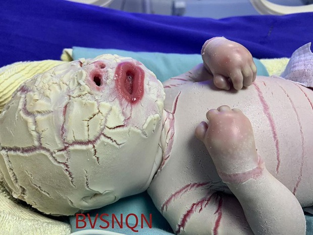 Hiếm gặp: Mắc bệnh lý rối loạn da di truyền, một trẻ sơ sinh có da toàn thân bị khô cứng - Ảnh 1.