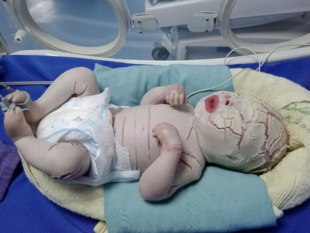 Hiếm gặp: Mắc bệnh lý rối loạn da di truyền, một trẻ sơ sinh có da toàn thân bị khô cứng - Ảnh 2.