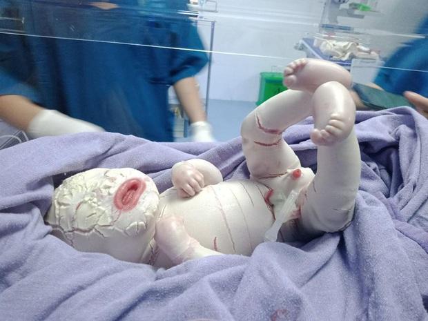 Hiếm gặp: Mắc bệnh lý rối loạn da di truyền, một trẻ sơ sinh có da toàn thân bị khô cứng - Ảnh 3.