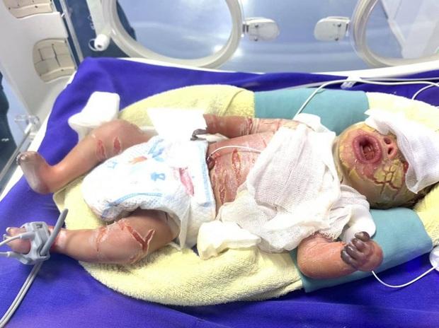 Hiếm gặp: Mắc bệnh lý rối loạn da di truyền, một trẻ sơ sinh có da toàn thân bị khô cứng - Ảnh 4.
