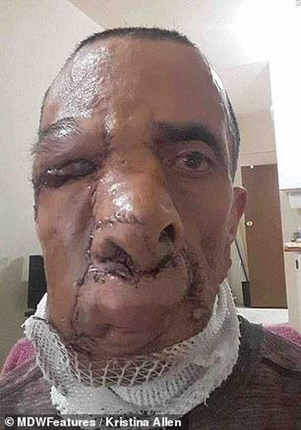 Người đàn ông từng bị người đời gọi là quỷ dữ vì khối u khổng lồ ăn hết cả khuôn mặt giờ đây có cuộc sống như thế nào? - Ảnh 4.
