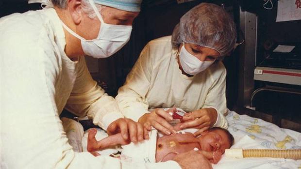 Bé gái hơn 10 ngày tuổi đã mang trong cơ thể trái tim của khỉ sau ca phẫu thuật cấy ghép phi thường khiến giới y khoa ngỡ ngàng - Ảnh 1.