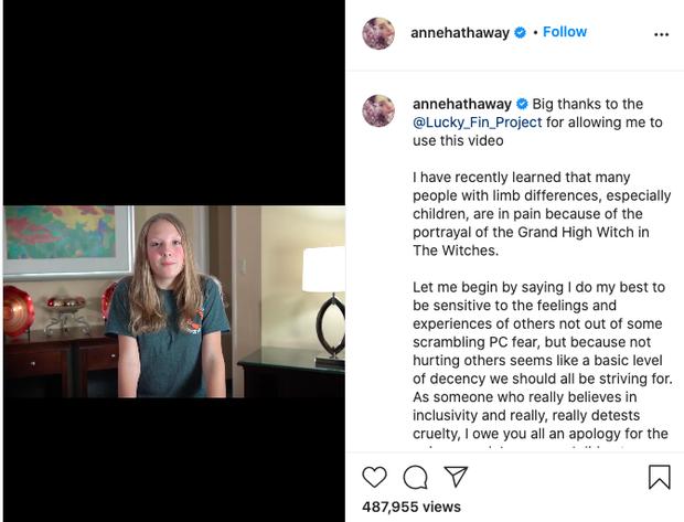 Anne Hathaway đăng đàn xin lỗi vì tạo hình phù thủy xúc phạm người khuyết tật, liền nhận về lời khen vì xử lí cực khéo - Ảnh 3.