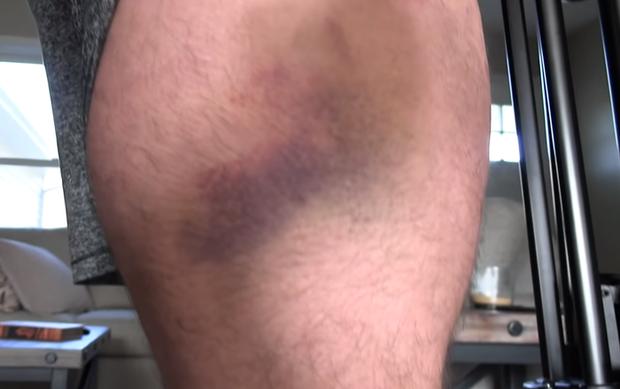 Đứng yên để võ sĩ UFC tung chuỗi đòn cước vào chân, VĐV thể hình cơ bắp cuồn cuộn tím đùi, ngã gục xuống sàn - Ảnh 2.