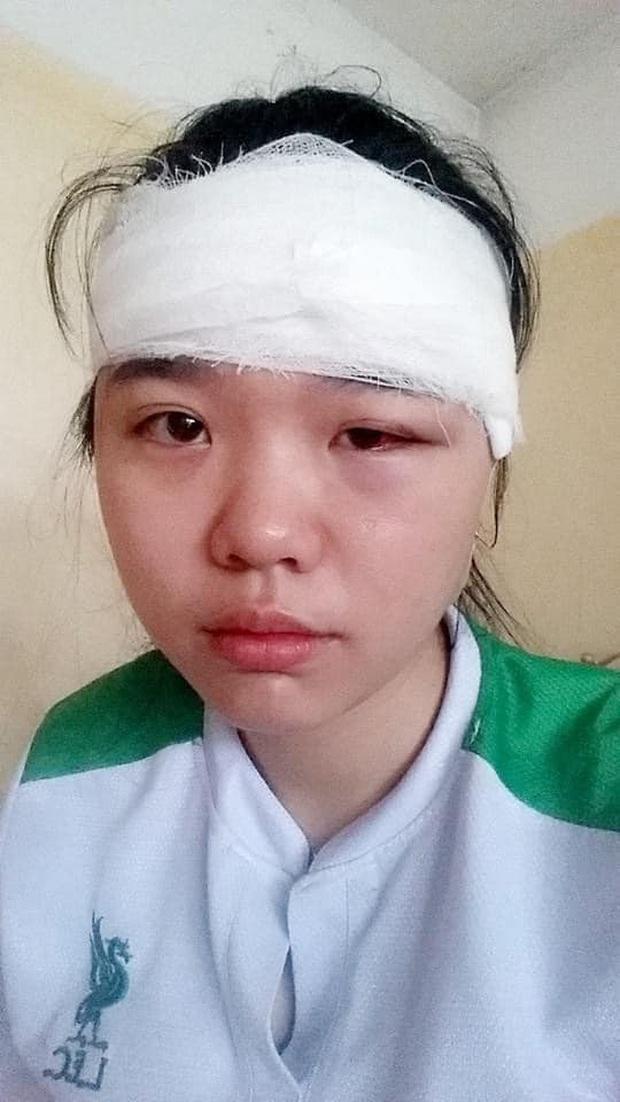Bị quạt trần chặt vào đầu khi mới vào ký túc xá ở, nữ sinh NEU lột xác ngoạn mục sau 4 năm - Ảnh 4.