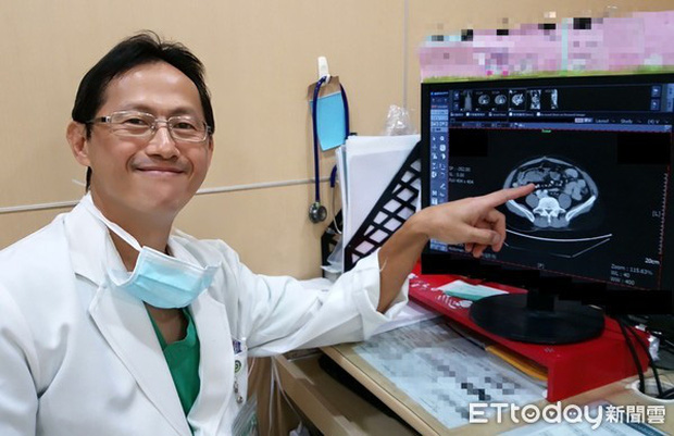 3 người trong 1 gia đình ở Đài Loan cùng mắc ung thư đại trực tràng, bác sĩ vạch trần nguyên nhân đến từ yếu tố di truyền của người mẹ - Ảnh 2.