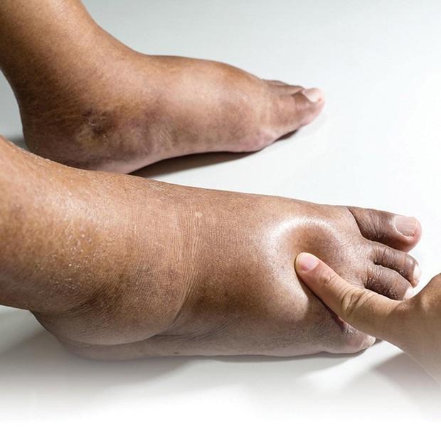 3 điểm bất thường trên bàn chân ngầm cảnh báo nguy cơ mắc bệnh gan rất cao nhưng nhiều người chẳng hay biết - Ảnh 3.