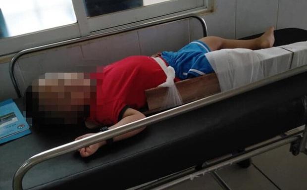 Vụ bé 3 tuổi bị gãy xương đùi trong lớp: Cô giáo gác chân phải của bé lên cổ - Ảnh 1.