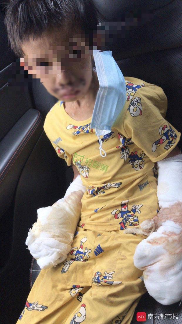 Bé trai 7 tuổi tàn phế vì bị bạo hành: Bố đâm tàn thuốc khắp người, mẹ dùng dao khứa vào chân, hình ảnh nạn nhân gây đau lòng - Ảnh 1.