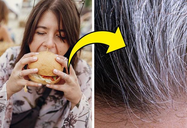 Không muốn tóc bạc sớm từ năm 20 tuổi, bạn nên chú ý tới 6 vấn đề là nguyên nhân điển hình gây ra tình trạng này - Ảnh 3.