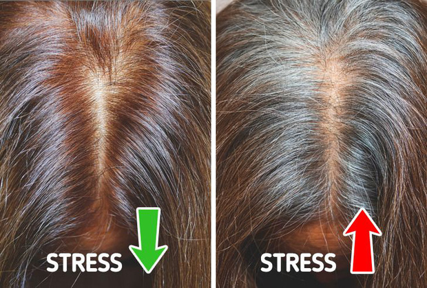 Không muốn tóc bạc sớm từ năm 20 tuổi, bạn nên chú ý tới 6 vấn đề là nguyên nhân điển hình gây ra tình trạng này - Ảnh 4.