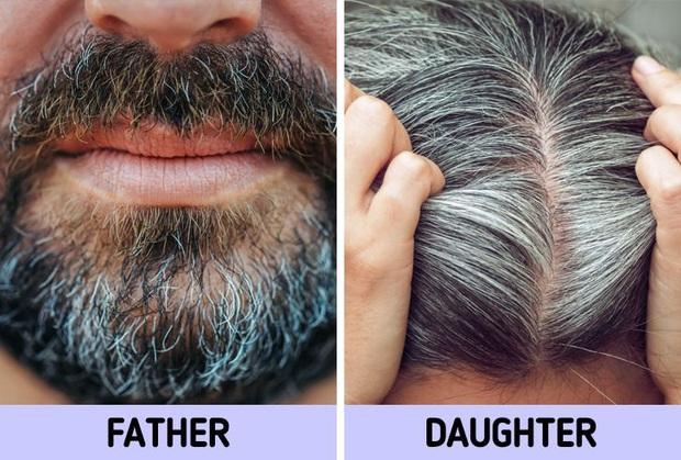 Không muốn tóc bạc sớm từ năm 20 tuổi, bạn nên chú ý tới 6 vấn đề là nguyên nhân điển hình gây ra tình trạng này - Ảnh 5.