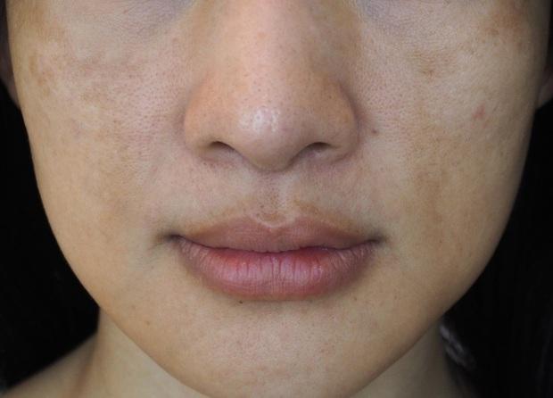 7 sai lầm to đùng khi chăm sóc da khiến lỗ chân lông của bạn ngày càng lộ rõ - Ảnh 4.