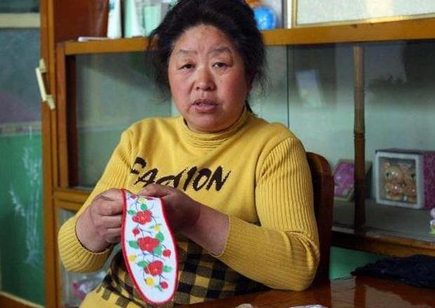 Lạm dụng quá nhiều vitamin C với mong muốn hồi xuân, người phụ nữ Trung Quốc thấy mặt nổi đầy nám, tàn nhang - Ảnh 1.