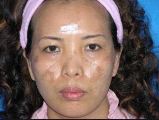 Lạm dụng quá nhiều vitamin C với mong muốn hồi xuân, người phụ nữ Trung Quốc thấy mặt nổi đầy nám, tàn nhang - Ảnh 2.