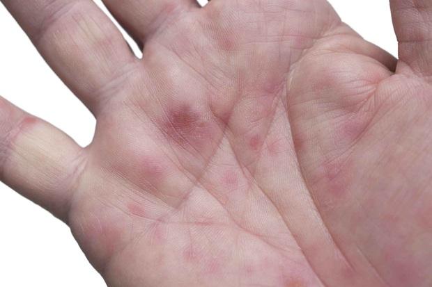 3 dấu hiệu lạ xuất hiện trên da cảnh báo tình trạng gan đang hoạt động rất kém - Ảnh 1.