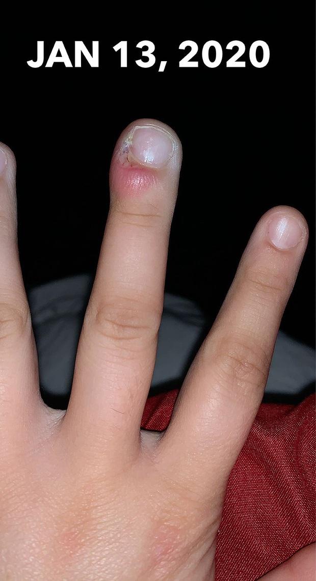 Cô gái 18 tuổi suýt mất ngón tay do thói quen xấu mà ai cũng dễ mắc phải - Ảnh 3.