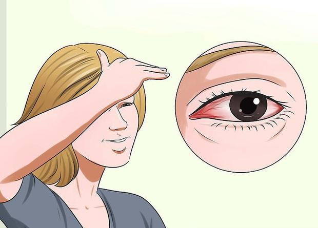 Vì sao mắt lại bị đỏ ngầu sau khi tỉnh dậy? - Ảnh 4.