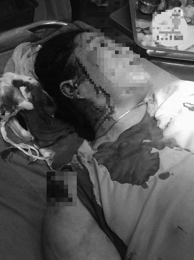 Bình Thuận: Hẹn đánh ghen, một phụ nữ bị đâm rách mặt - Ảnh 1.