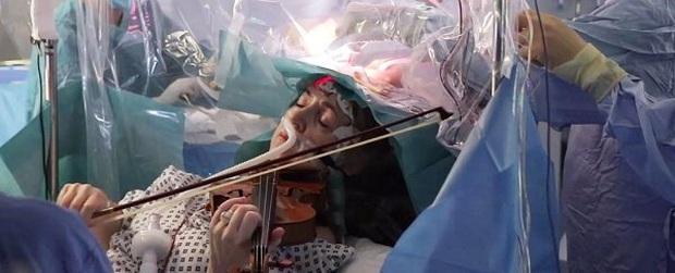Tỉnh bơ gảy đàn violin khi bác sĩ đang phẫu thuật não, bệnh nhân này đã chứng minh phim ảnh không hề giỡn chơi - Ảnh 4.