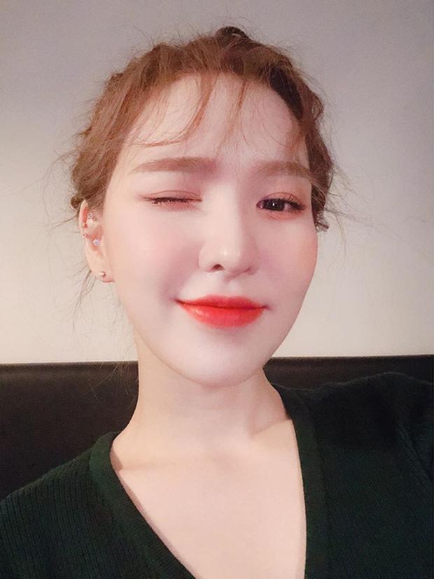 Wendy (Red Velvet) đăng tải loạt ảnh đầu tiên sau vụ tai nạn chấn động, nhan sắc gây mê thế này ai mà chịu nổi - Ảnh 8.