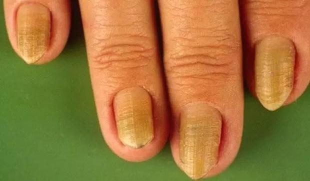 """Nếu có dấu hiệu """"bàn đỏ, tay nhỏ, móng lạ thường"""", có thể gan của bạn đang có vấn đề - Ảnh 3."""