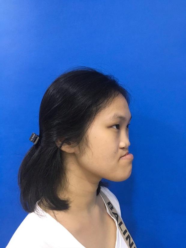 Cô gái sứt môi, hở hàm ếch bẩm sinh từng bị trêu chọc là người ngoài hành tinh và hành trình lột xác khiến nhiều người ngỡ ngàng - Ảnh 2.