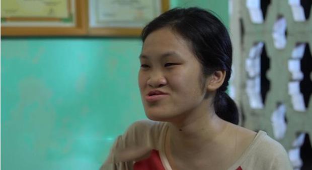 Cô gái sứt môi, hở hàm ếch bẩm sinh từng bị trêu chọc là người ngoài hành tinh và hành trình lột xác khiến nhiều người ngỡ ngàng - Ảnh 1.