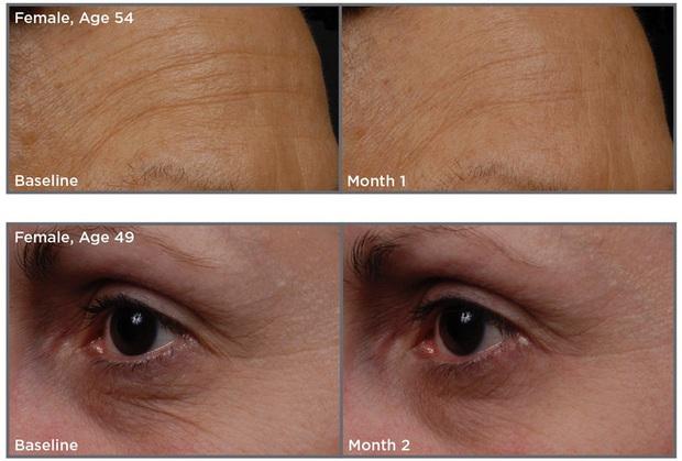 5 loại kem mắt giá từ 230k đánh bay quầng thâm và nếp nhăn bạn nhất định nên biết tới - Ảnh 5.