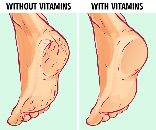 Nhiều người thường bị nứt gót chân nhưng lại không biết rõ nguyên nhân thực sự là do đâu - Ảnh 2.