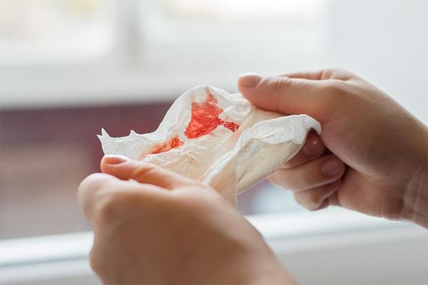 Nếu gặp phải 1 trong 5 hiện tượng lạ sau đây, bạn nên cẩn thận vì nguy cơ mắc ung thư vòm họng là rất cao - Ảnh 3.