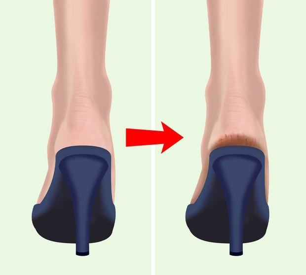 Nhiều người thường bị nứt gót chân nhưng lại không biết rõ nguyên nhân thực sự là do đâu - Ảnh 3.