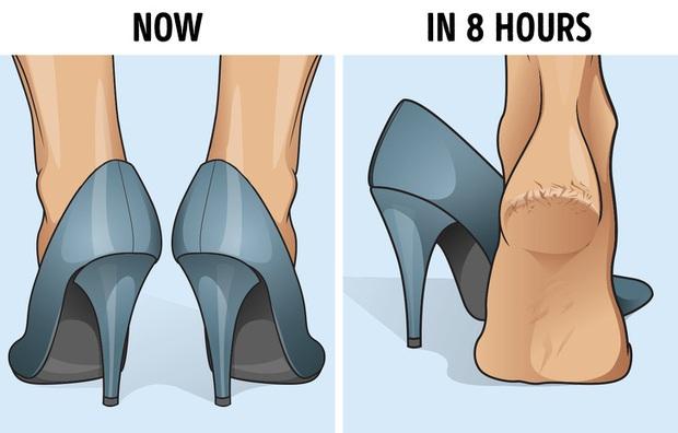 Nhiều người thường bị nứt gót chân nhưng lại không biết rõ nguyên nhân thực sự là do đâu - Ảnh 5.