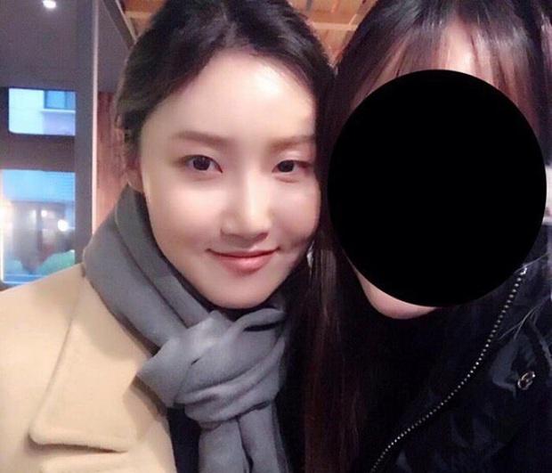 Hội 5 nữ thần mặt mộc gây xôn xao Kpop: Nayeon và IU hack tuổi là có lý do, nhưng chưa bất ngờ bằng Hwasa - Ảnh 22.