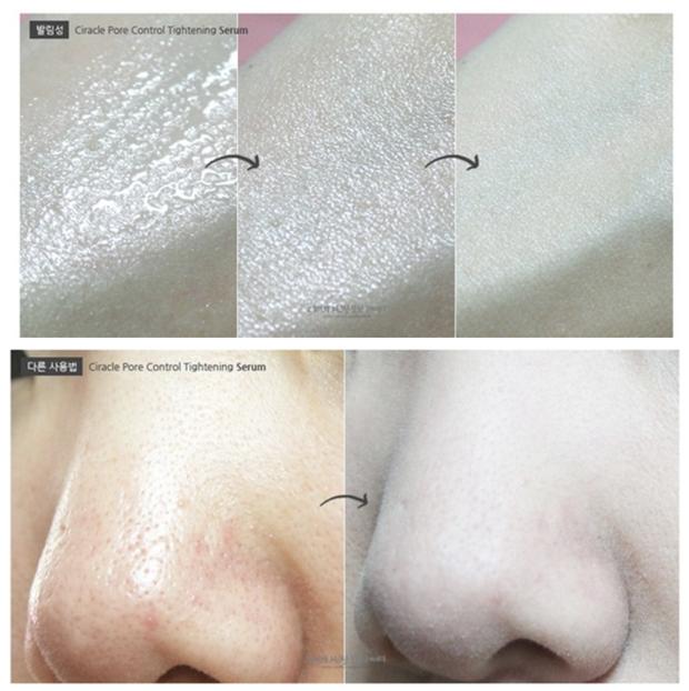 5 lọ serum cải thiện lỗ chân lông to toang hoác giá chỉ từ 280k, dùng rồi là hết nỗi sợ da xấu luôn - Ảnh 6.