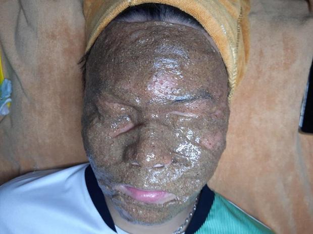 Chùm ảnh: Khi đắp mặt nạ là một nghệ thuật, nhưng không phải ai trong số chúng ta cũng là nghệ sĩ! - Ảnh 3.