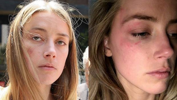 Amber Heard và Johnny Depp: Cuộc hôn nhân phim giả tình thật biến thành drama bạo hành, đào mỏ không hồi kết - Ảnh 7.