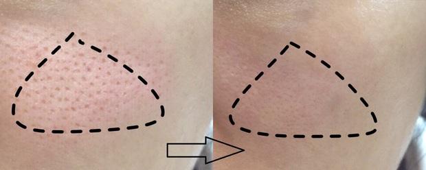 Đến giờ này, tôi mới tìm ra combo skincare giúp lỗ chân lông nhỏ mịn trông thấy, đã thế da còn mướt mát lên nhiều phần - Ảnh 3.