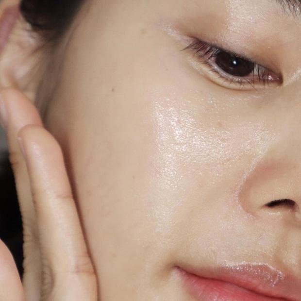 5 bước giúp bạn xóa sạch đến từng đốm mụn, lại dưỡng da căng sáng long lanh luôn thể - Ảnh 3.