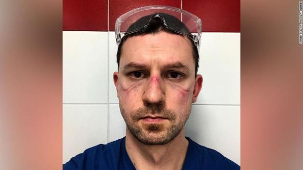 Xót thương những khuôn mặt bầm tím và đầy vết hằn của các y bác sĩ đang căng mình ra chống dịch Covid-19 trên toàn thế giới - Ảnh 1.