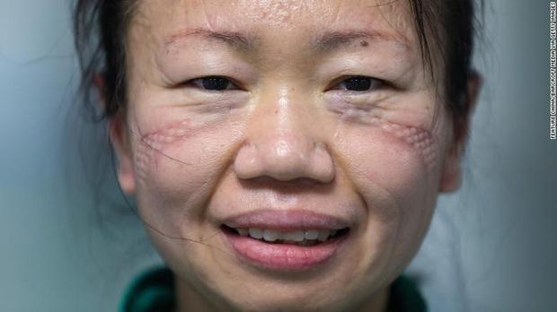 Xót thương những khuôn mặt bầm tím và đầy vết hằn của các y bác sĩ đang căng mình ra chống dịch Covid-19 trên toàn thế giới - Ảnh 5.