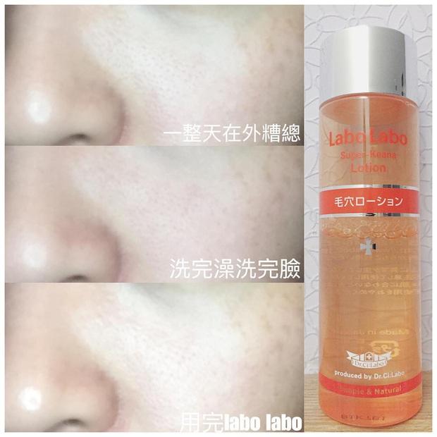Tuyệt hơn cả serum, chai lotion bình dân Nhật Bản đã giúp lỗ chân lông của cô bạn này nhỏ mịn đi thấy rõ - Ảnh 3.