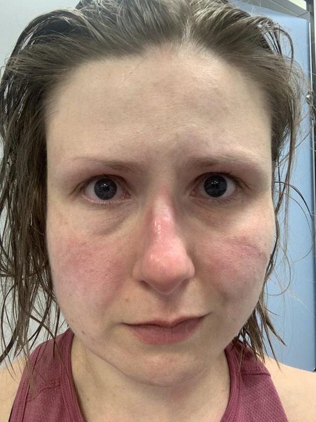 Xót thương những khuôn mặt bầm tím và đầy vết hằn của các y bác sĩ đang căng mình ra chống dịch Covid-19 trên toàn thế giới - Ảnh 2.